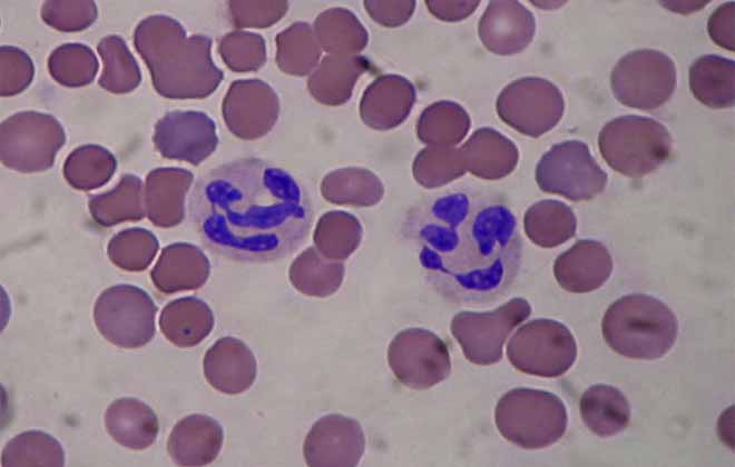 raznovidnost neytrofil - An increase or decrease in segmented neutrophils in the blood causes