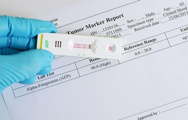 Анализы во время беременности АФП и ХГЧ