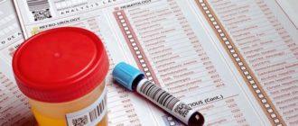 Бета-ХГЧ анализ крови или мочи