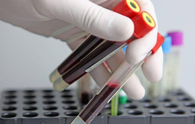 Исследование крови на уровень ХГЧ