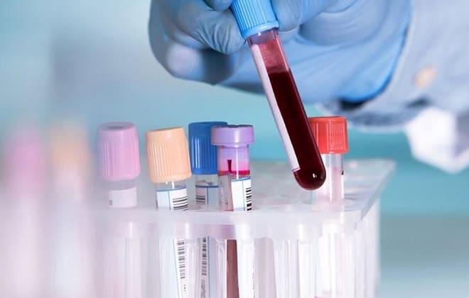 Кровь на анализ в колбе