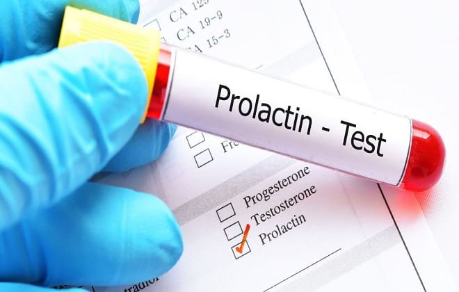 Пролактин тест
