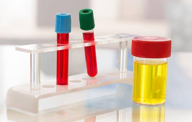 Сколько делается по времени анализ на гормон ХГЧ