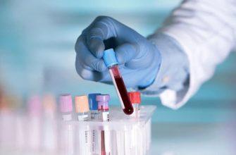 Сдача анализа крови на ХГЧ