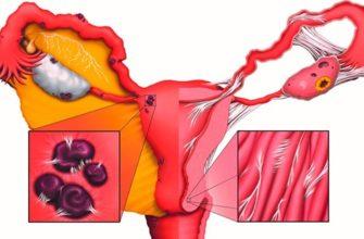 Туберкулез половых органов