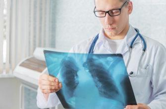 Первичный туберкулезный комплекс
